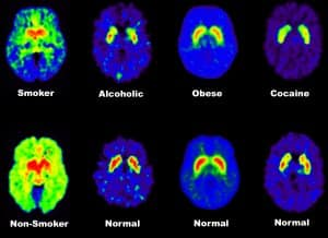 Drugs and the Effects on the Brain